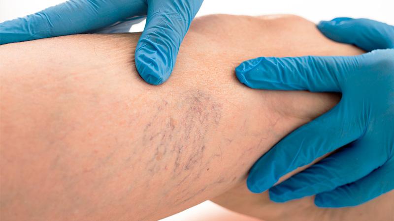 tratamentos-de-telangiectasias